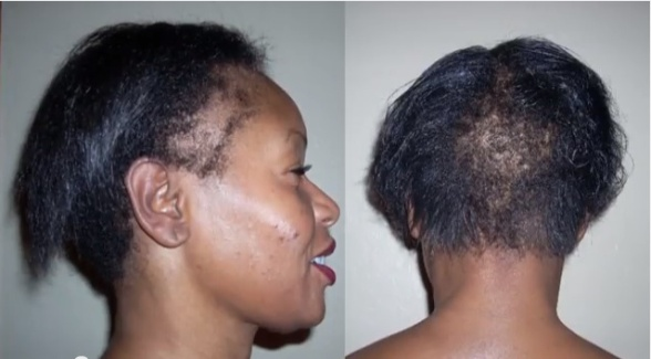 Edges and balding can be repaired